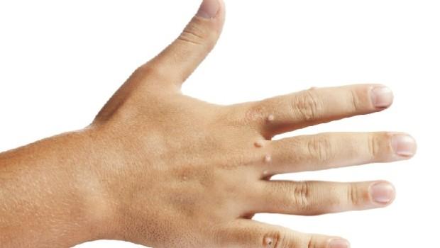 Podział grzybic paznokci