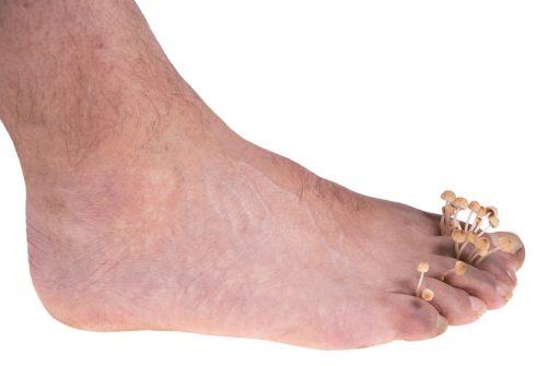Powikłania grzybicy stóp