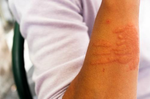 Czym są dermatofity?